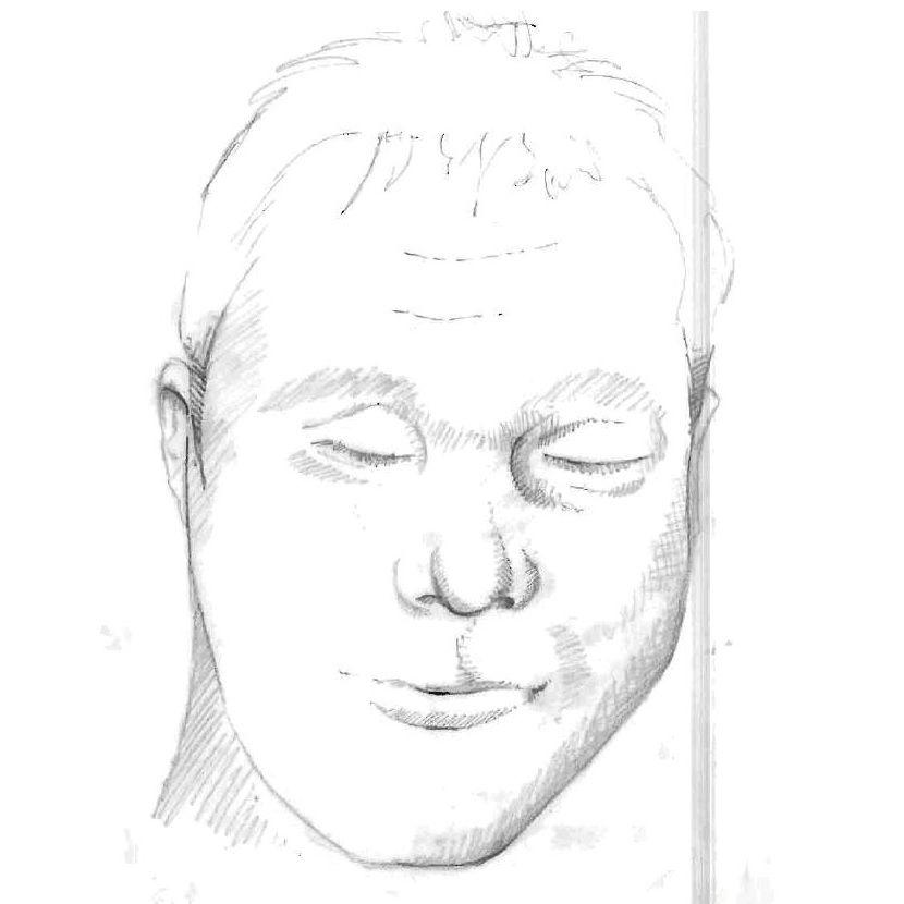 Case Image - 13-001849 - 2